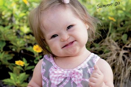 Малышка с синдромом Дауна стала лицом детского бренда