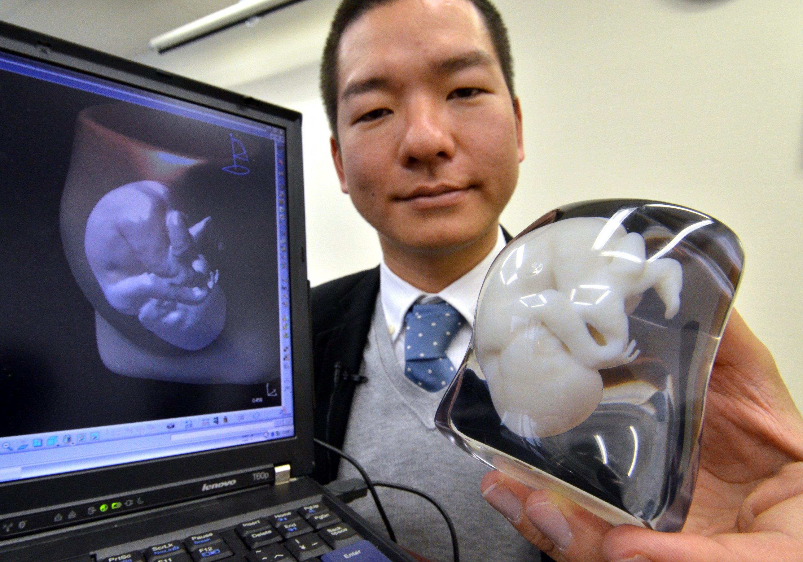 Родители уже могут заказать 3-D скульптуру будущего ребенка!