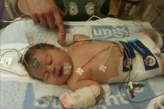 Новорожденного ребенка заморозили, чтобы спасти ему жизнь
