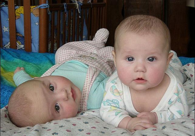 Двойняшки появились на свет с разницей в целый год