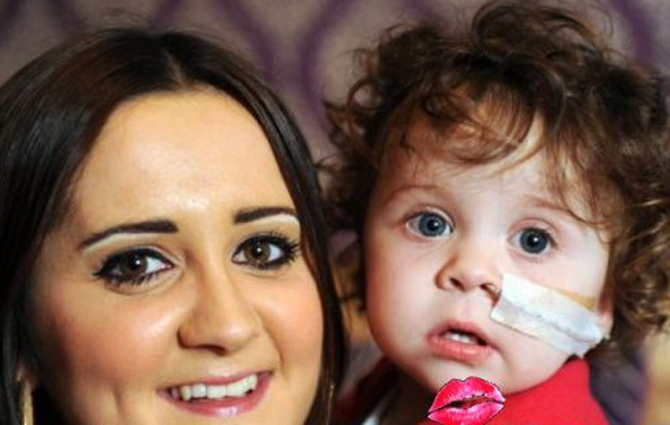 В Великобритании спасают девочку с желудком наружу