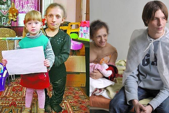 Дочка самой маленькой женщины Украины переросла маму