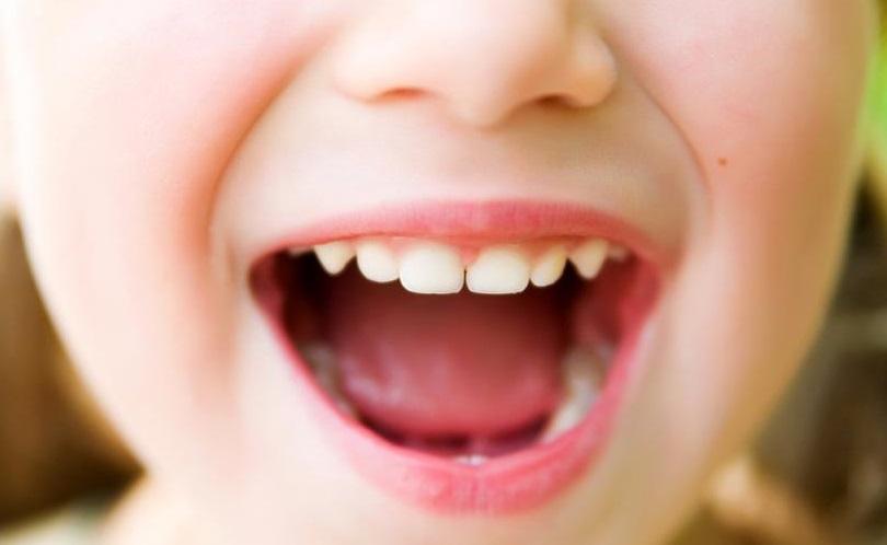 Как вылечить ребенку зубы в домашних условиях 170