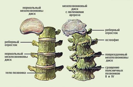 Может развиваться остеохондроз