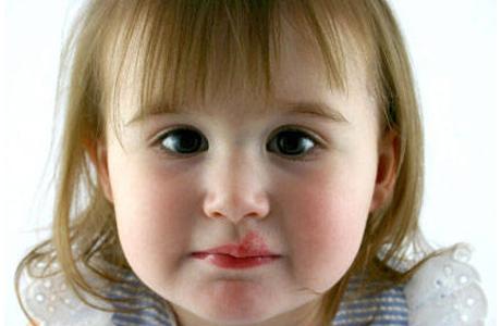 Герпес у ребенка - диагностика