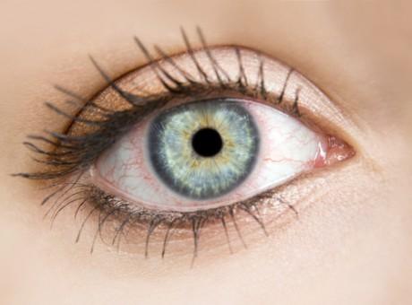 Красные глаза после родов